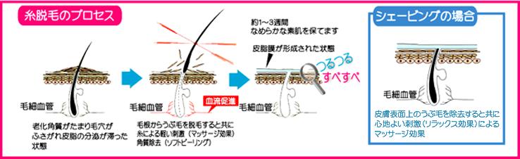 糸脱毛のプロセス