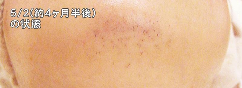 太いウブ毛の毛細化